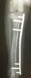 tibia fracture3